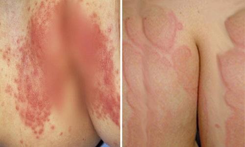 Hình ảnh viêm da cơ địa ở mông - Căn bệnh khó nói