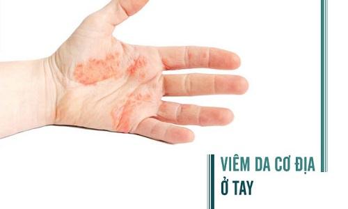 Hình ảnh viêm da cơ địa ở tay