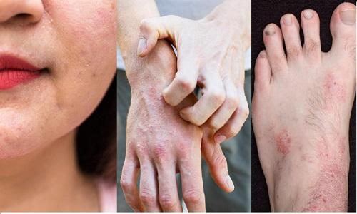 Hình ảnh viêm da cơ địa ở người lớn - bệnh gây ra nhiều khó chịu trong sinh hoạt và công việc